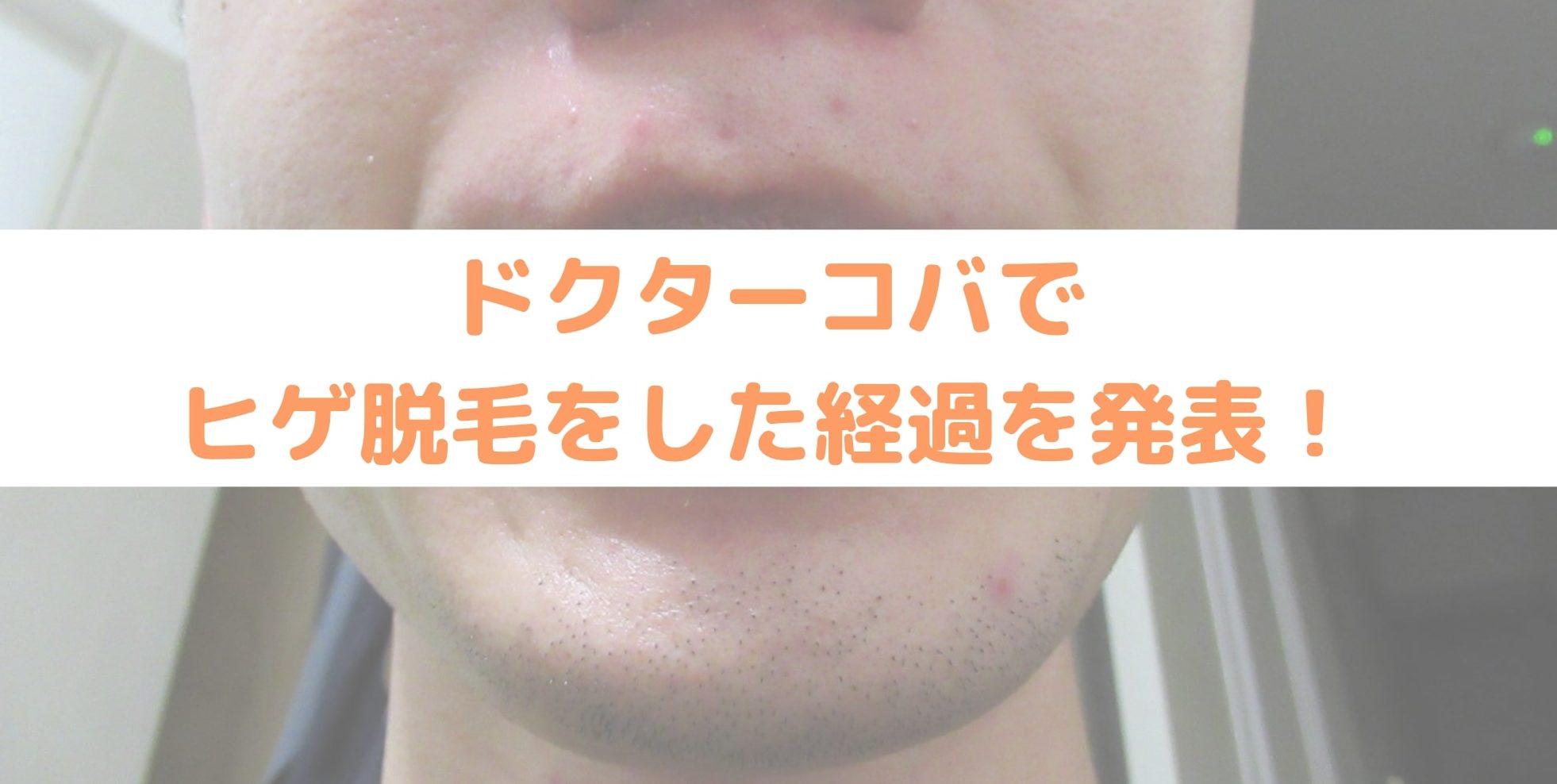 【ドクターコバ編】ヒゲ脱毛の経過報告|アレキサンドライト・ライトシェアで現在も治療中