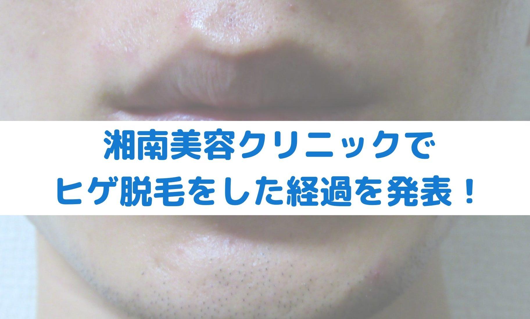 【湘南美容クリニック編】ヒゲ脱毛の経過報告|メディオスター計10回