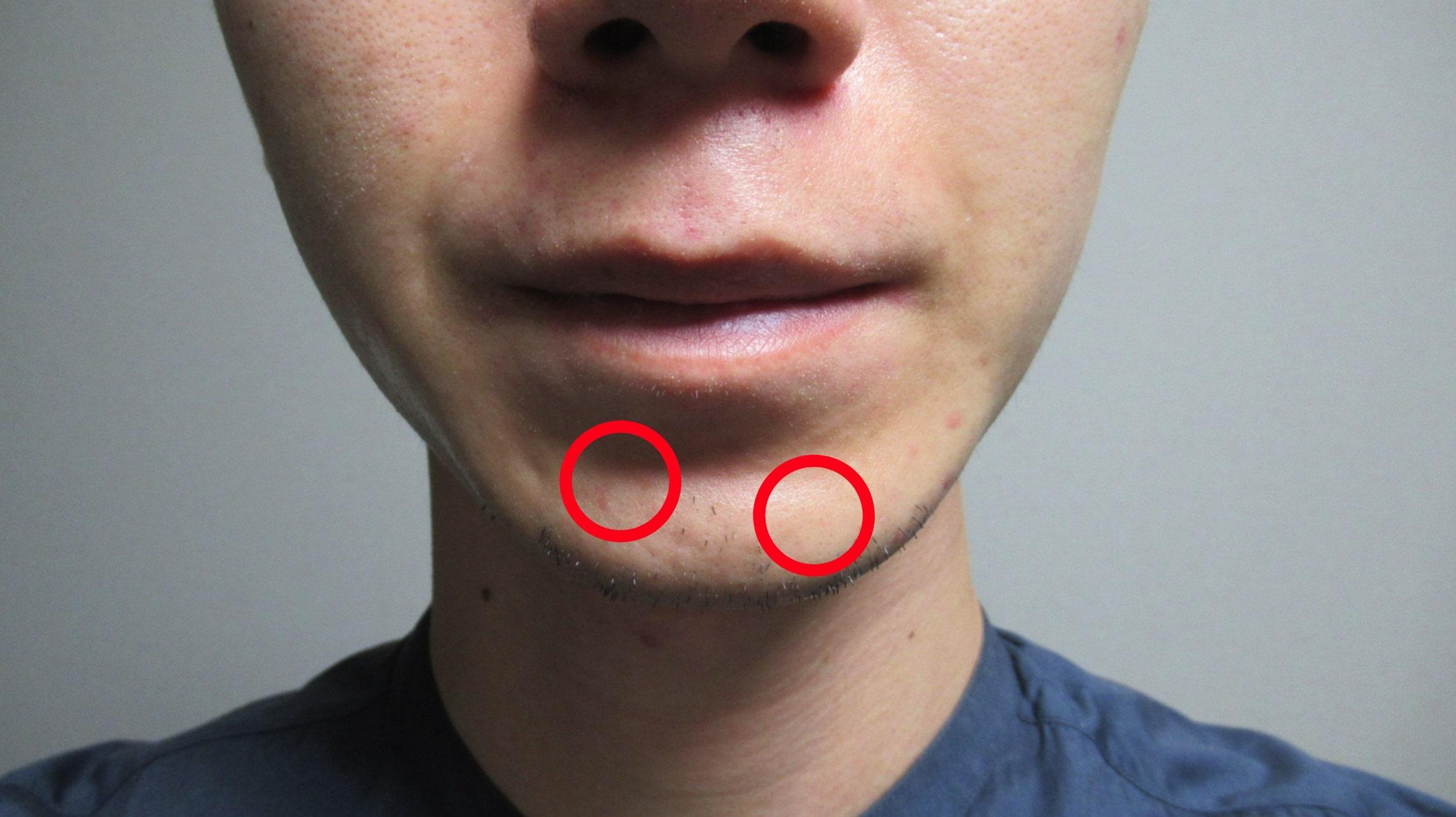 【結論】髭脱毛後はほとんどのヒゲが復活しない